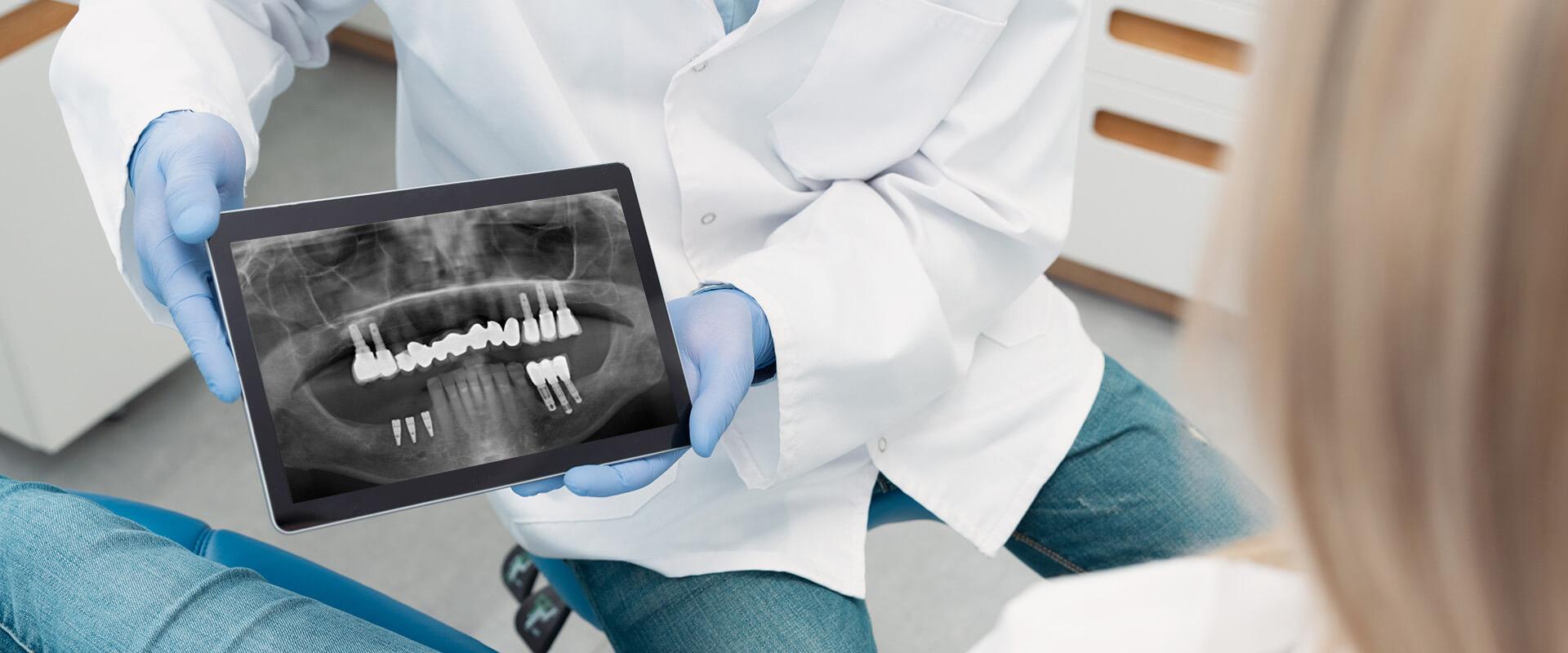 Zahnarzt Reisinger Roentgenbild